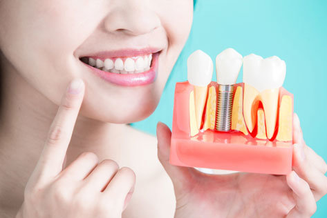 Dental Implants IN HARRISBURG NC