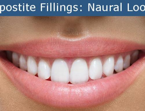 All About Composite Fillings White Fillings | Harrisburg Dental Practice