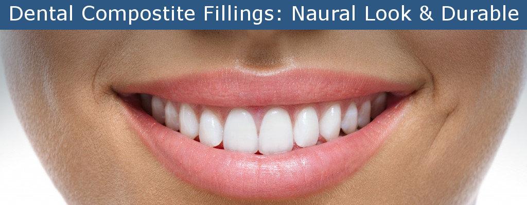 composite fillings white fillings at harrisburg dental practice