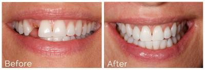 detal implants dentist in harrisburg nc