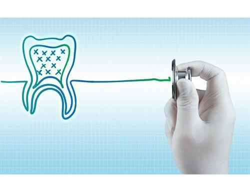7 Foods to Avoid for Long Term Oral Health