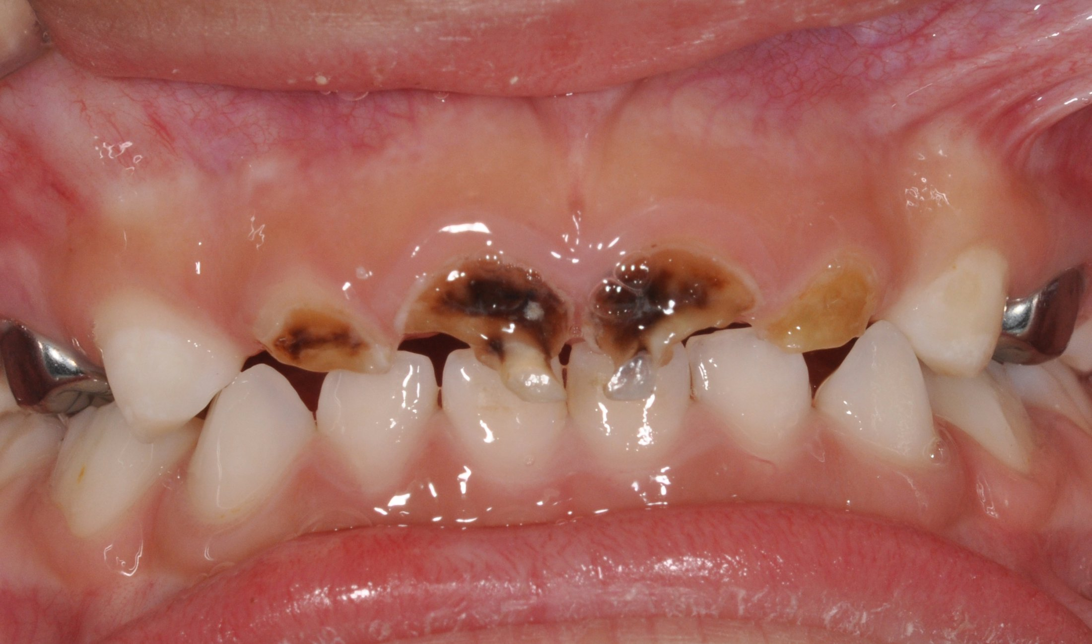 Pediatric Tooth Decay: Causes, Treatment and Prevention