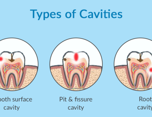 8 Myths About Cavities Explained