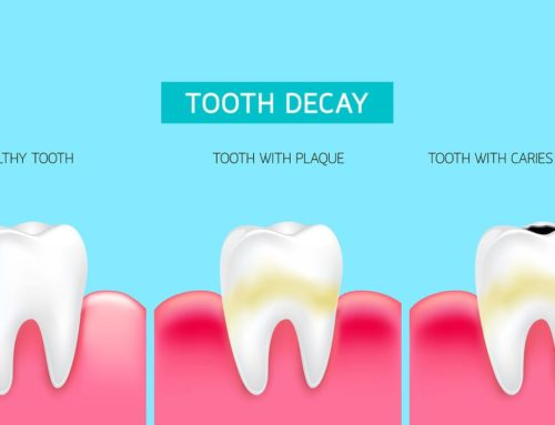 Tooth Decay Process In Adults & Young Children