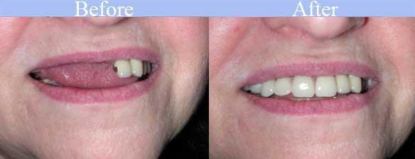 partial dentures harrisburg nc