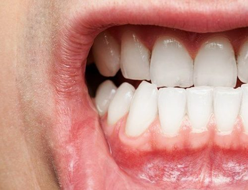 Gum Disease: Gum Surgery Explained