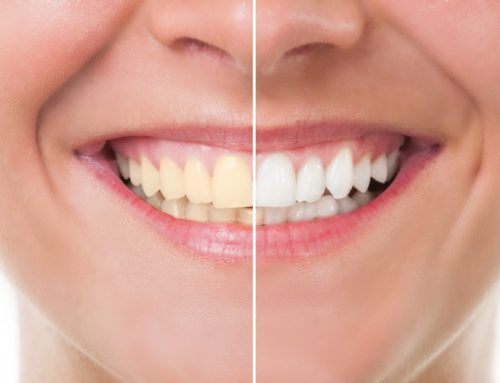 Consider Teeth Whitening To Improve Your Smile