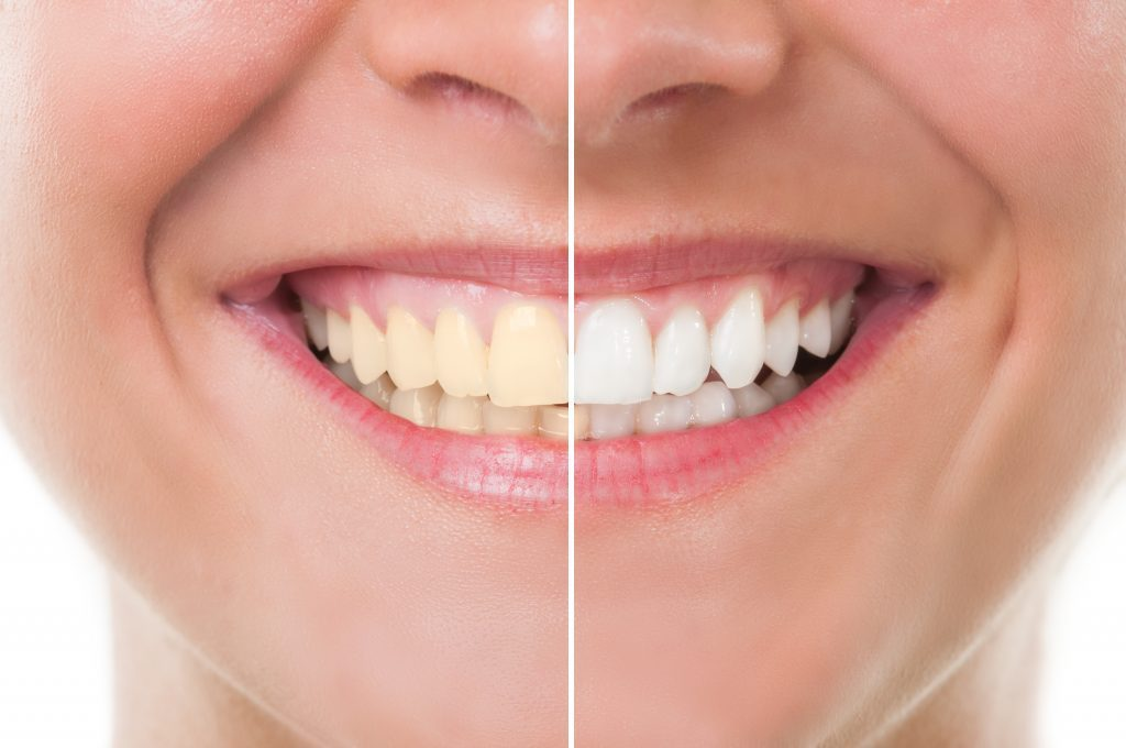 Considering Teeth Whitening? | Dentist In Harrisburg NC | Icard & Strein