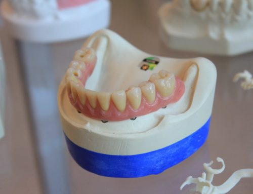 Some Facts About Dental Implants You Need To Know