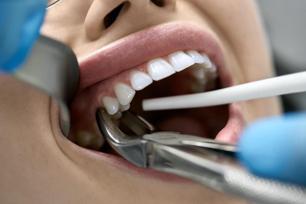 Tooth Extraction - Icard & Strein Family Dentistry