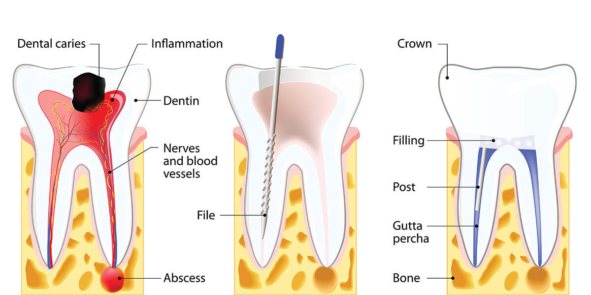 When Do You Need a Root Canal - Icard & Strein Family Dentistry