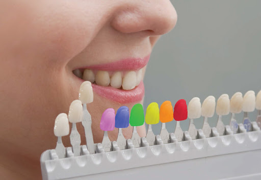 5 Helpful Facts About Tooth-Colored Fillings