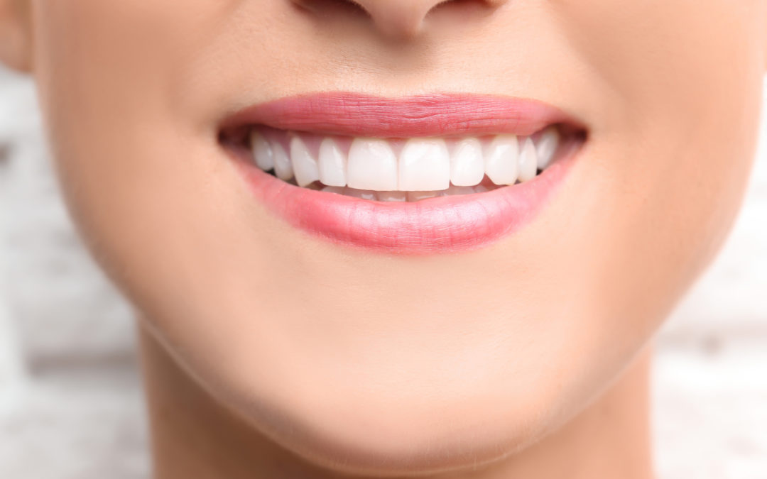 5 Things About Dental Bonding You Need To Know