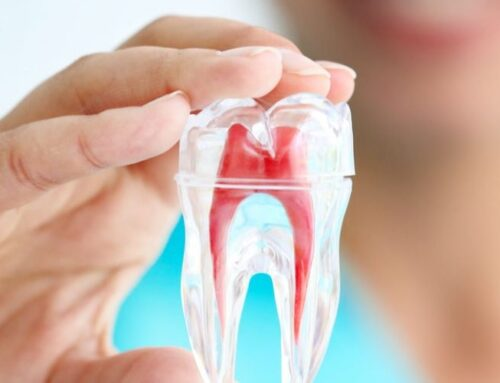 4 Misconceptions About Root Canal Therapy Debunked!