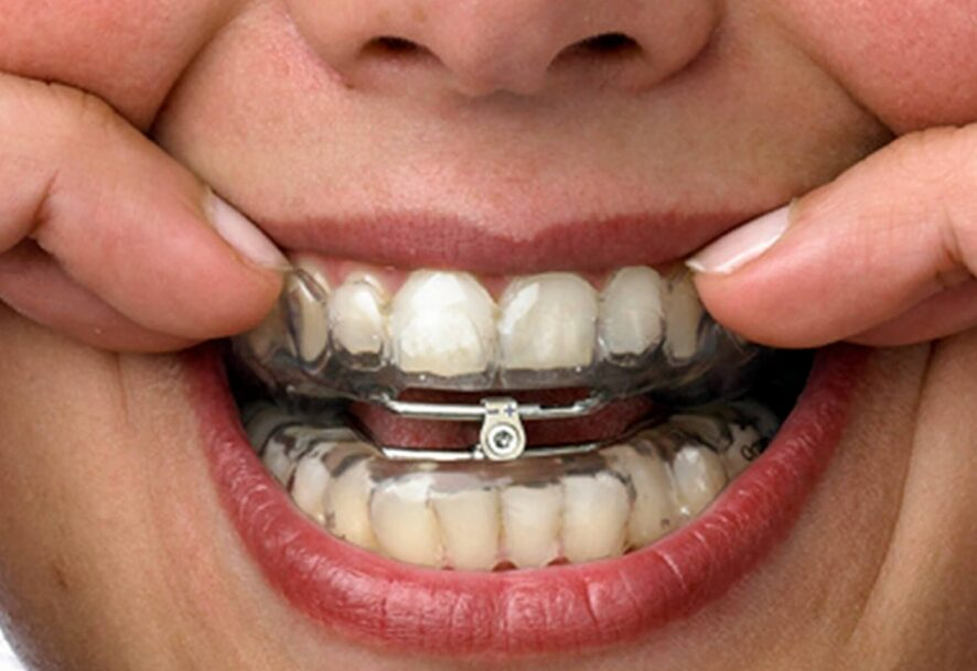 Some Commonly Asked Questions About Oral Appliance Therapy
